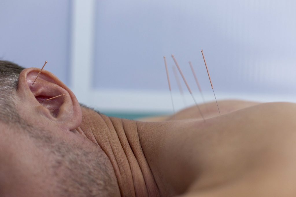acupuncture needles on the body