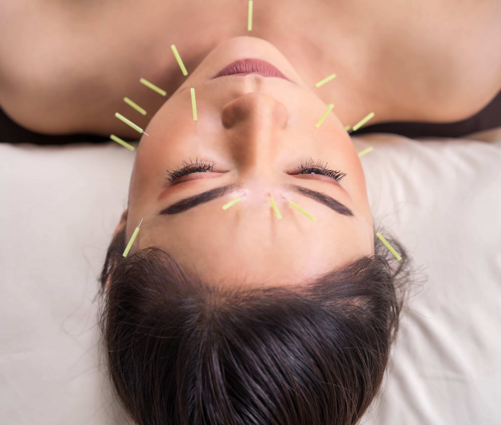woman undergoing acupuncture treatment on face
